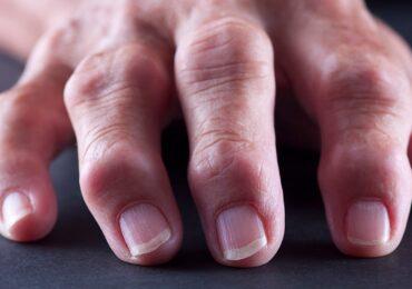 Thói quen bẻ khớp ngón tay có gây hại gì không?